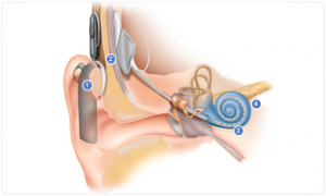 cochlear_implant_pic